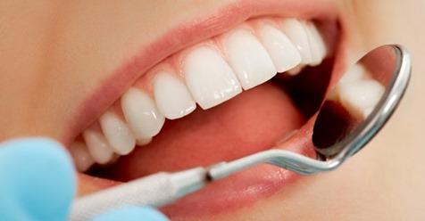 La carie dei denti potrebbero essere (anche) causate dal sistema immunitario